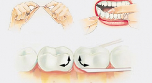 Правилно използване на конците за зъби