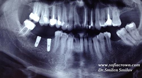 Клиничен случай - имплантология