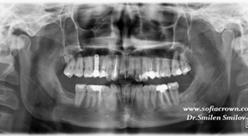 Clinical case-implantology